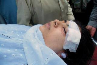 Pakistani girl shot in the head by Taliban (2)